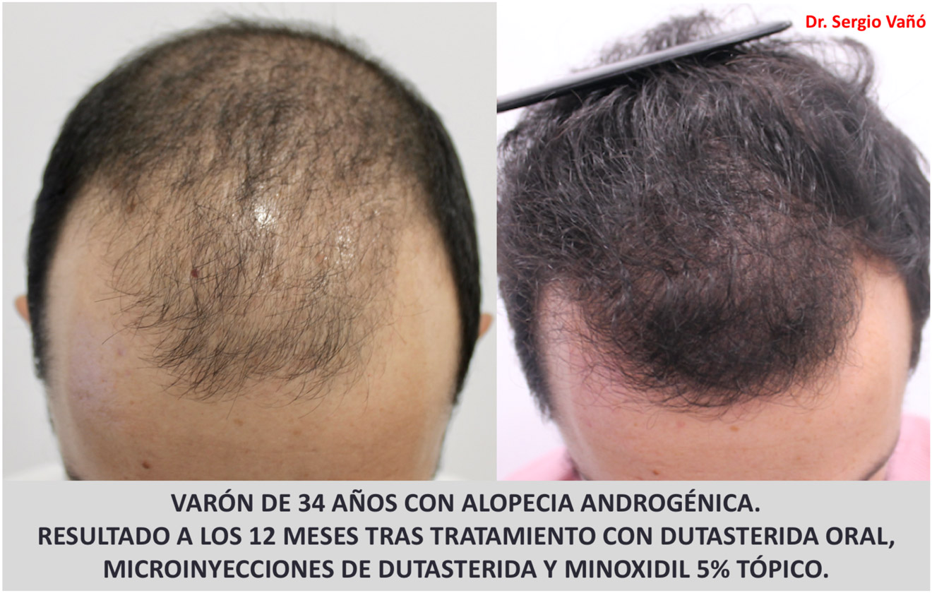 venta caliente barato distribuidor mayorista precios de remate Alopecia Androgénica Masculina - Hombres, Causas, Solucion ...