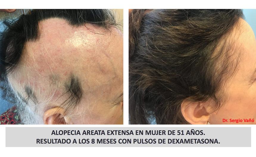 vitamine per alopecia